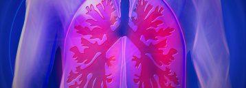 Kol lungesygdom